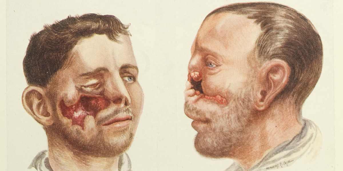 H.P. Pickerill'in Yüz Ameliyatı kitabından, 1924 / Wellcome Images